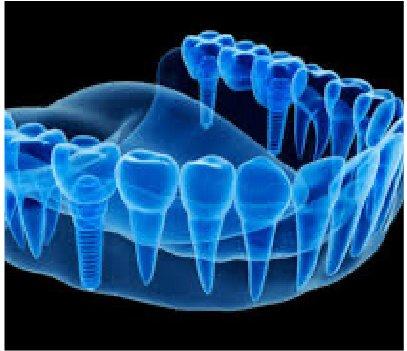 Odontología Digital - Clínica Dental MZL
