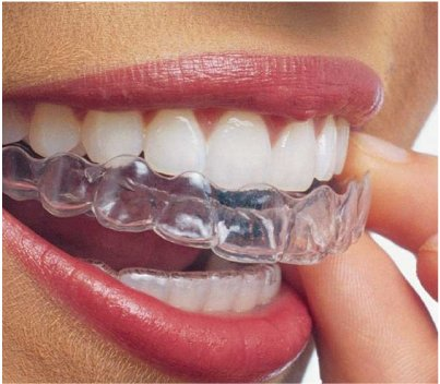 Ortodoncia Invisible - Clínica Dental MZL