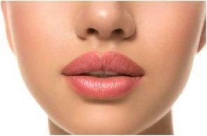 Estética Facial- Perfilado de labios - Clínica Dental MZL - Mallorca