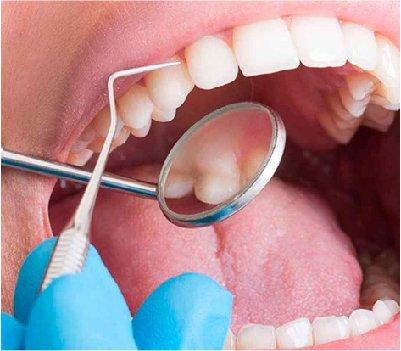 Periodoncia - Clínica Dental MZL