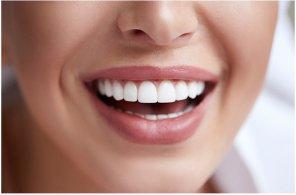 Estética Facial - Sonrisa Gingival - Clínica Dental MZL - Mallorca